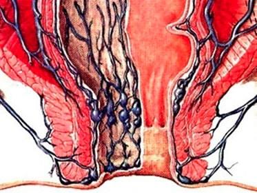 vene ano: Storia naturale della malattia emorroidaria